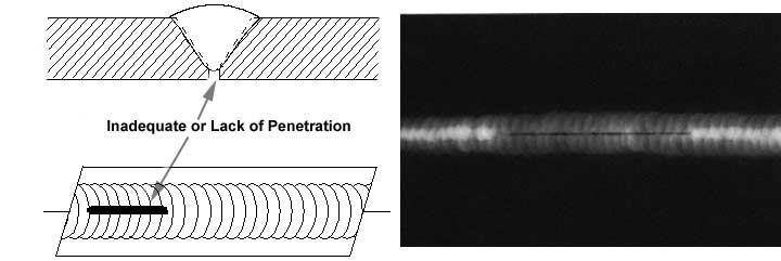 Radiographic Incomplete penetration / lack of penetration
